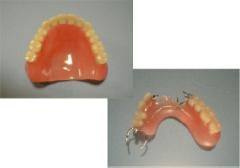 レジン床 義歯